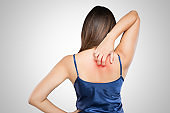 Woman scratching her itchy back with allergy rash, Concept with Healthcare And Medicine.