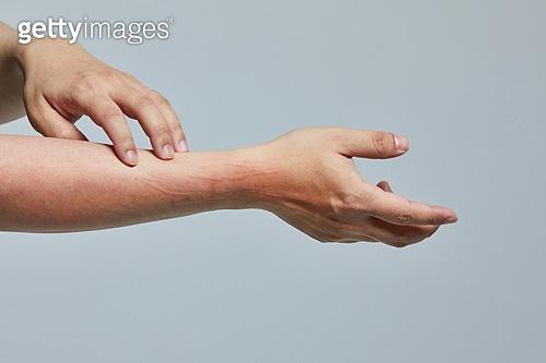 피부 질환