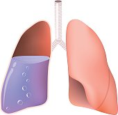 Lungs with water
