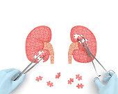 Kidneys operation