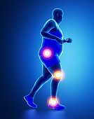 Running man with pain in leg, knee, hip and ankle