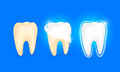 Set of  clean and dirty tooth. Step of yellow to white.