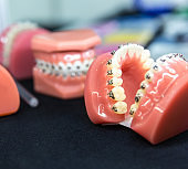 Dental or orthodontic tools, denture closeup