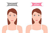Girl with Acne Before and After