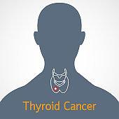 Thyroid Cancer vector icon illustration