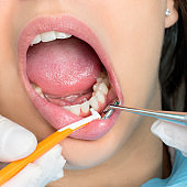 Interdental cleaning on human teeth.