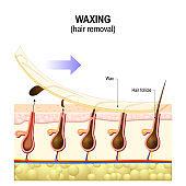 Hair removal. Wax