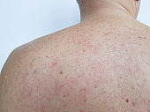 birthmark pimples on the back men bad skin