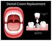 Human Mouth Dental Crown Replacement
