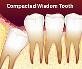 A Compacted wisdom tooth