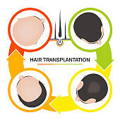 Hair transplantation 4 steps infographics