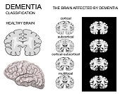 dementia, Alzheimer disease and its classification. nervous system