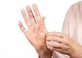 Female hands psoriasis