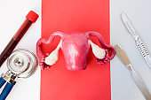 Surgical diagnosis and surgical treatment of diseases of uterus, ovaries, cervix and other organs of female reproductive system. Uterus is close to laboratory equipment on one side and two scalpels