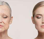 Comparison. Portrait of beautiful woman with problem and clean skin, aging and youth concept, beauty treatment
