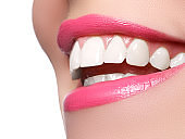 Beauty care. Part of woman face. Perfect smile before and after bleaching. Dental care and whitening teeth