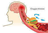 Hamburger and Pizza and French fries block red blood cell cause clogged in artery before into brain.