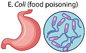 Magnified cells of food poisoning