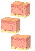 Wrinkles and healthy skin
