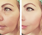 woman wrinkles face before and after correction procedures
