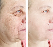 face wrinkles elderly woman before and after treatment