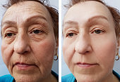 face of an old woman wrinkles before and after procedures retouch