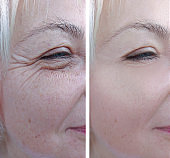 Elderly women face wrinkles before and after treatment