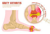 Gout arthritis infographic