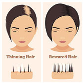 Female pattern alopecia set. Medical educational poster.