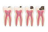 Caries tooth. Decay pulpit dental problem procedure root vector tooth medical pictures