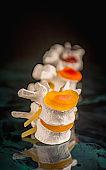 Vertebrae and discs. Neurodegenerative disease.