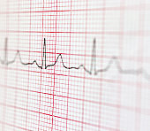 Cardiogram. Electrocardiogram as background. Macro.