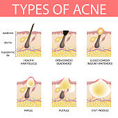 19-01-13-types-of-acne