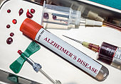 blood sample to investigate remedy against Alzheimer's disease, conceptual image