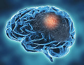 Neurodegenerative Parkinson's, Alzheimer's diseases, memory problems concept illustration.
