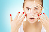 anti acne therapy concept/ portrait of girl with problem skin