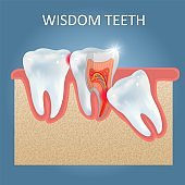 Wisdom teeth problems vector poster design template