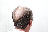 Bald back of men`s head.Concept of baldness