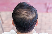 Close up hair loss, thinning hair and scalp issue. hair loss treatment.head with loss symptoms. Bald treatment. Bald hair of male heredity