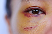 Sad eye of a domestic violence victim