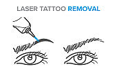 Eyebrow removal procedure, laser tattoo removal icons, microblading