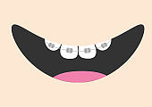 Mouth with tooth braces and tongue. Smiling face. Healthy teeth brace. Body part. Cute cartoon character. Oral dental hygiene Children teeth care icon. Baby background. Flat design