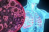 Pneumonia coronavirus x-ray lung illustration
