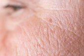 age spots on the face of a woman with dry skin and wrinkles, background, macro, problem