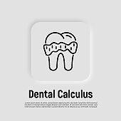 Dental calculus thin line icon. Tartar, gingivitis. Vector illustration.