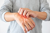Young asian man itching and scratching on hand from itchy dry skin eczema dermatitis