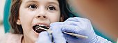 Teeth examination procedure done by a dentist to a small caucasian girl with opened mouth