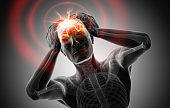 Headache - conceptual artwork - 3d illustration