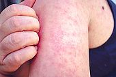 Measles, Women scratch the upper arm with one hand due to the numerous red pruritus., Measles is a disease that can spread easily.
