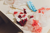 garbage with blood at surgery. image wit shallow DOF.